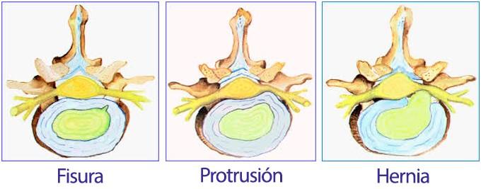 Fisura Protusión Hernia
